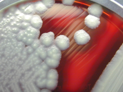 Bacillus_cereus_01